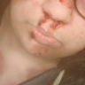 gruesomegretel
